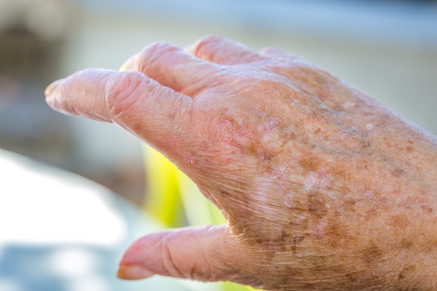 Home Care Services in Edgewood PA: Senior Dry Skin