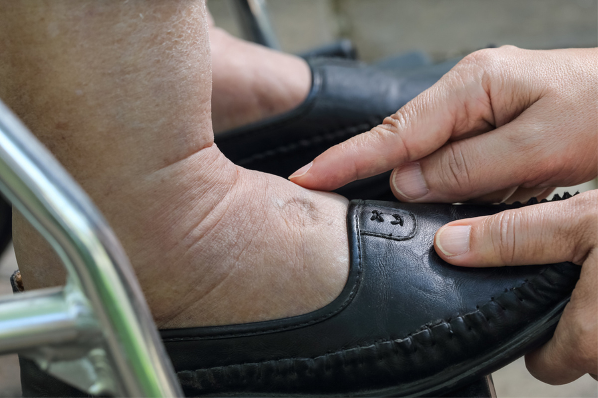 Elder Care in Pittsburgh PA: Foot Care Importance