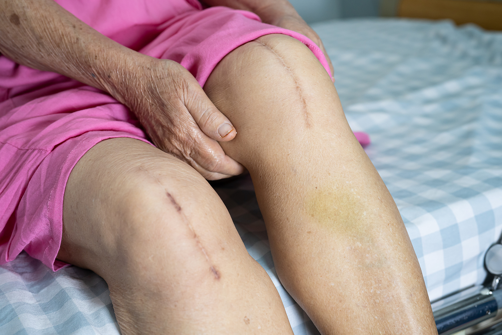 Senior Care in Sewickley PA: Knee Pain